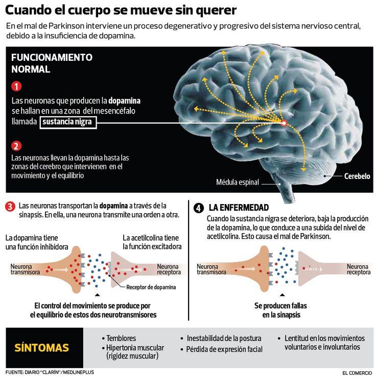 ESTIMULACIÓN ELÉCTRICA DEL CEREBRO CONTRA LA DEPRESIÓN