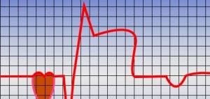 infarto-300x142