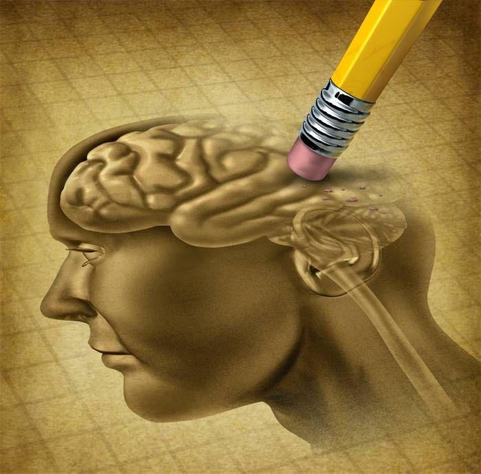 El análisis multivariado revela asociaciones genéticas de la red en modo de reposo por defecto en el trastorno bipolar y la esquizofrenia psicótica