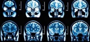 cerebro-imagen-300x142